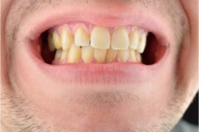 Yellowed smile that needs teeth whitening