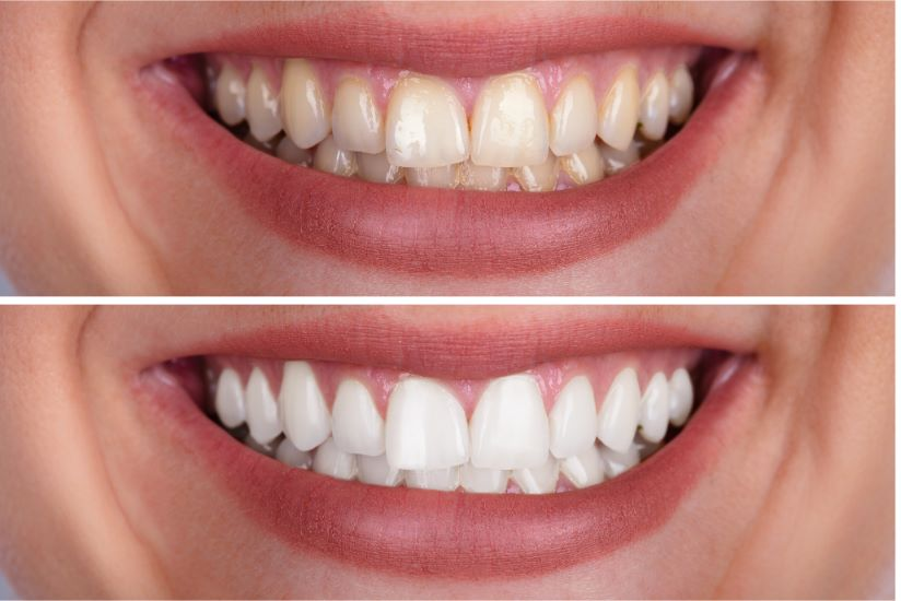 Before & after teeth whitening in {hampshire_locations}