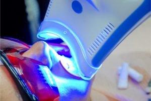 Woman having laser teeth whitening
